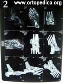 Спиральная компьютерная томография стопы - плосковальгусная деформация