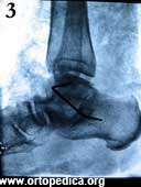 Рентгенограмма в боковой проекции после операции подтаранного артродеза