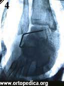 Рентгенограмма после операции подтаранного артродеза