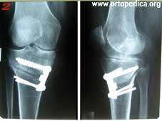 Рентгенография того же сустава после коррегирующей остеотомии большеберцовой кости по Пуду